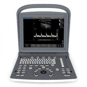 Chison Eco 2 Portable Ultrasound