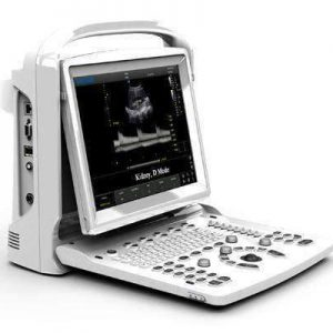 Chison ECO 3 Expert Ultrasound Machine